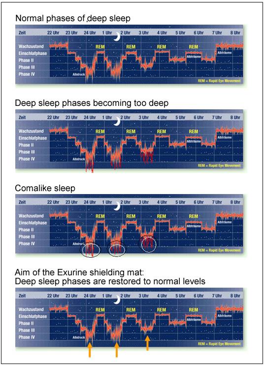 sen osób cierpiących na moczenie nocne przypomina śpiączkę