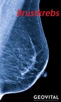 Zdiagnozowany rak piersi